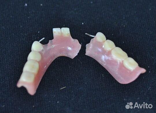Как починить зубной протез в домашних условиях